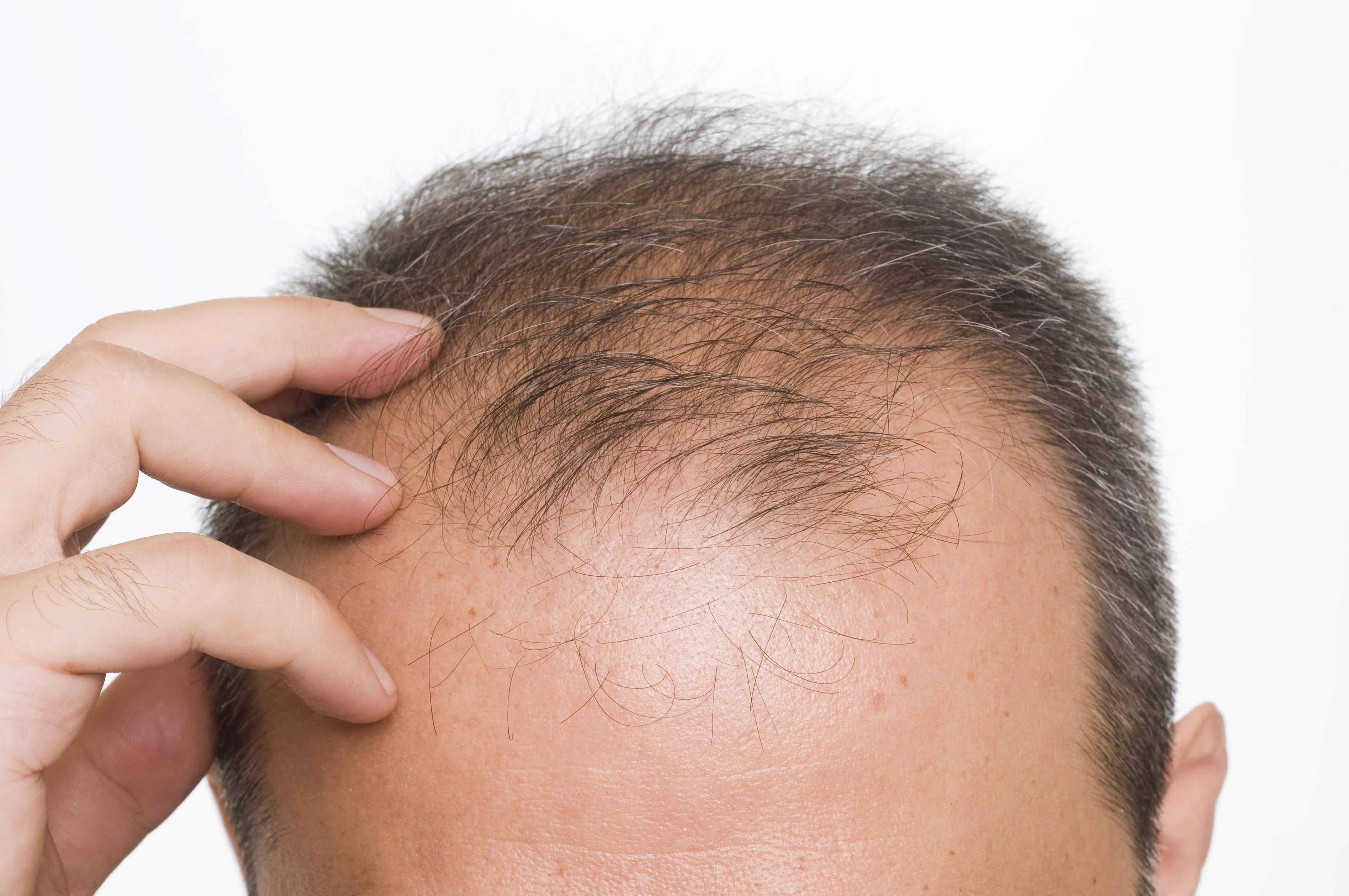 male-hair-loss-1