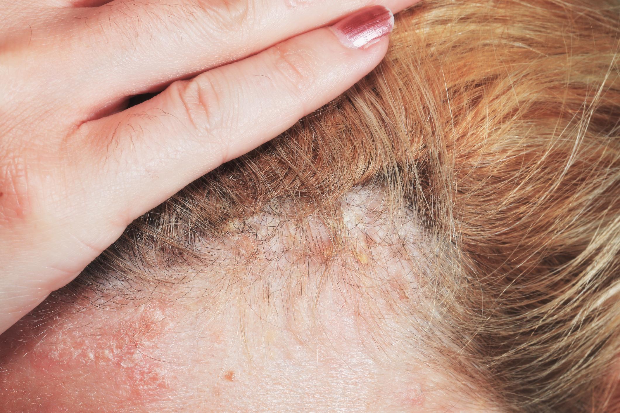 scalp psoriasis flakes