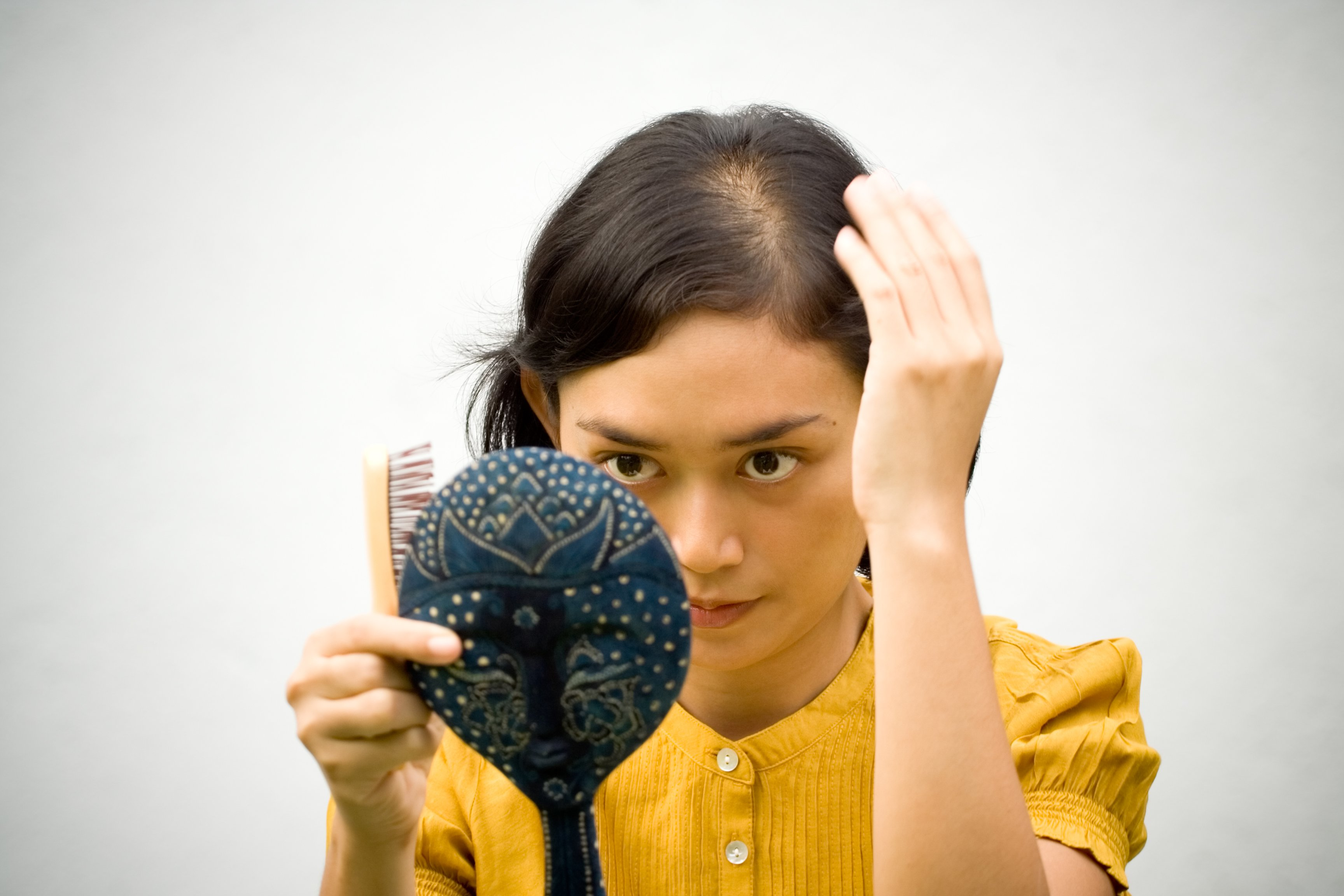 woman with hair loss along her part